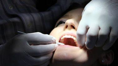 Diş Çekimi Hangi Durumlarda Yapılır?