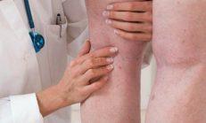 Derin Ven Trombozu: Tanımı, Nedenleri, Belirtileri ve Tedavisi