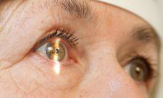 Glokom (Göz Tansiyonu): Türleri, Nedenleri, Semptomları ve Tedavisi