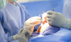 Rinoplasti (Burun Estetiği) Nedir, Türleri, Ameliyat Sonrası ve Fiyatı