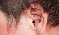 Kulak İçi Soyulması, Nedenleri ve Tedavisi